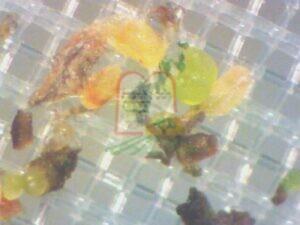ביצי תריפס מבעד לעדשת המיקרוסקופ